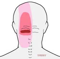 back pain head ache picture 1