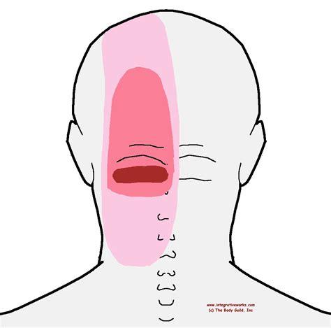 back pain head ache picture 2