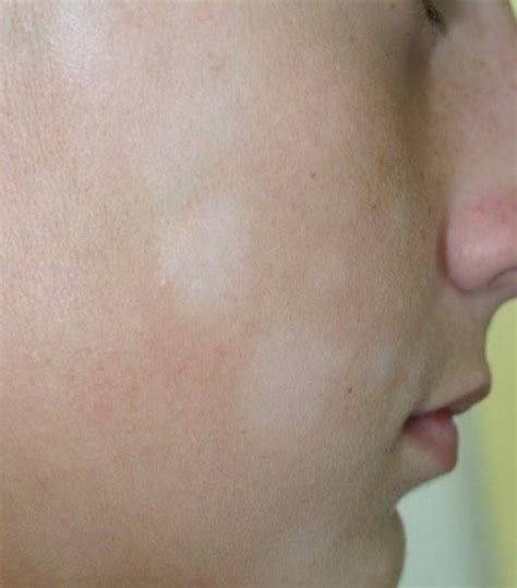 white spots on skin can be dehydraytion picture 2
