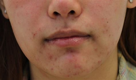 acne on the chin picture 2