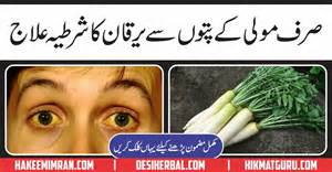 white discharge treatment in urdu picture 2