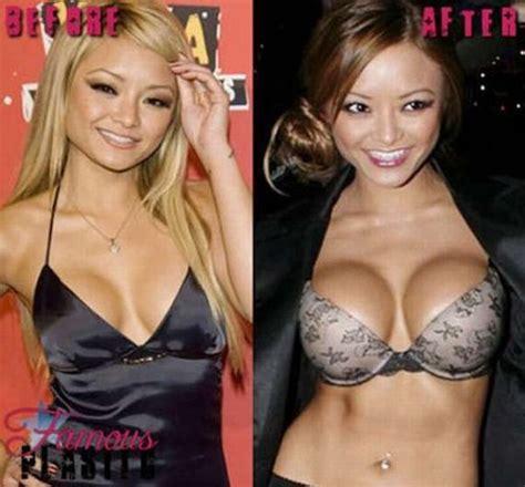 celebrity breast augmentation picture 1
