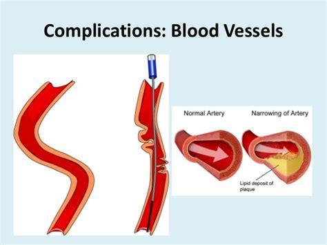Aneurysm highl blood pressure picture 11