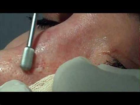 Co2 laser versus dermabrasion for acne scars picture 4