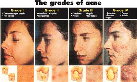 do phytoceramides help acne picture 3