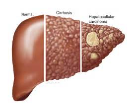 women and cirrhosis of the liver picture 2