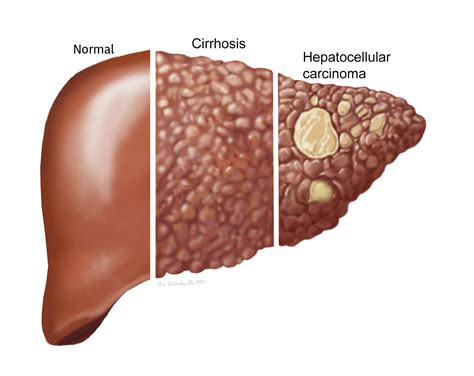 fatty liver and causes picture 3