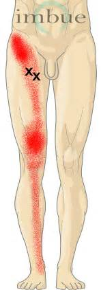 cause of muscle pain in thighs picture 3