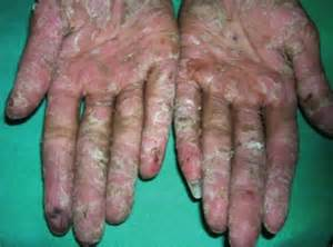 polymorphic skin lesions from uv exposure picture 1