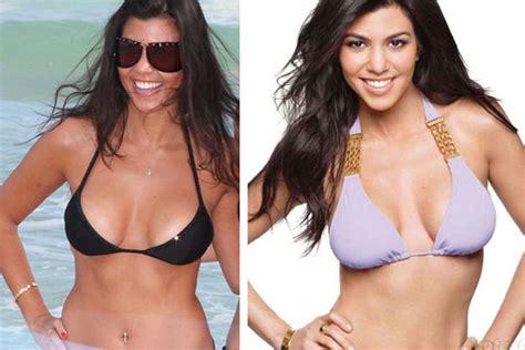 breast augmentation colorado picture 3