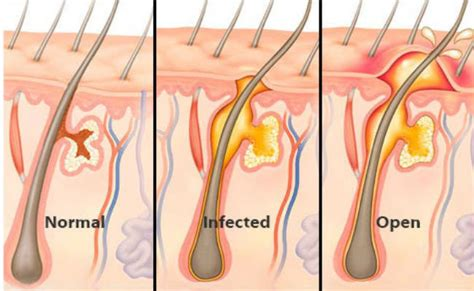 get rid of inflamed hair follicles ob vulva picture 3
