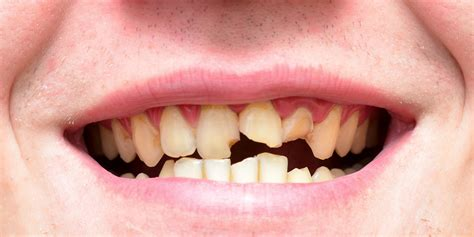 bad teeth picture 6