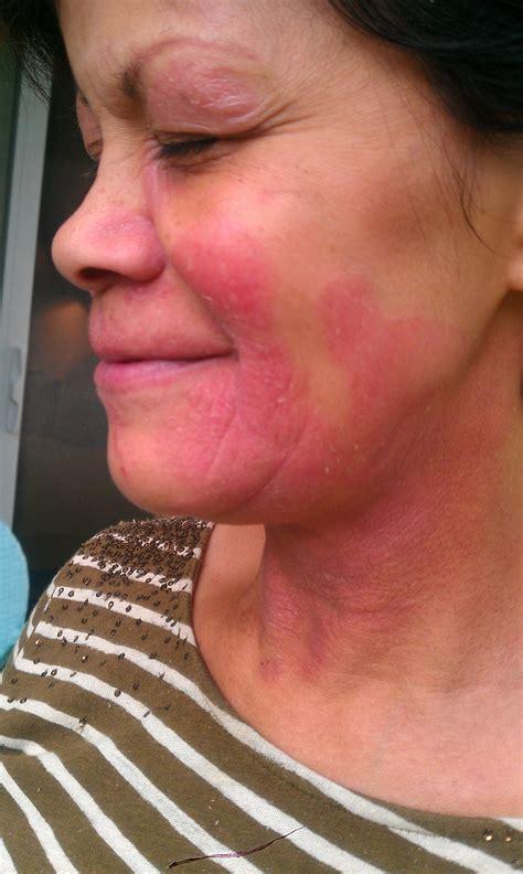 face skin rash picture 15