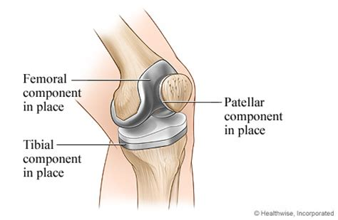 cost of knee joint replacement picture 22