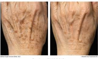 surgical stretch mark removal picture 10