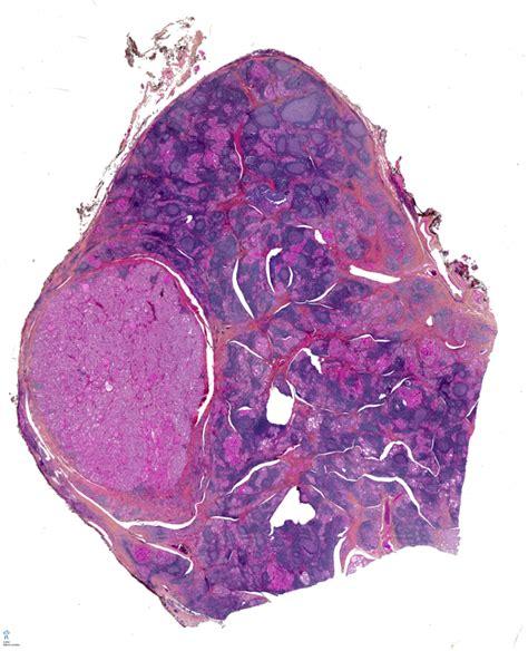 hyperplastic nodule thyroid picture 3