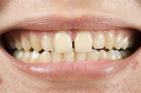 discolored teeth enamel effacia picture 18