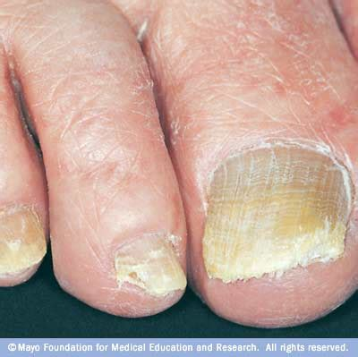 toe nail fungus infections picture 9