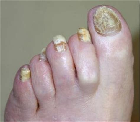 finger nail fungus picture 13