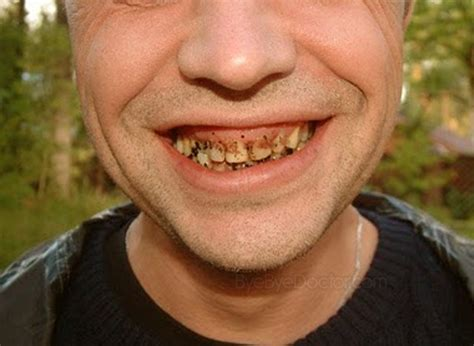 decaying teeth pictures picture 15