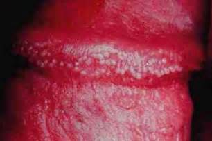 scabies on penile head picture 6