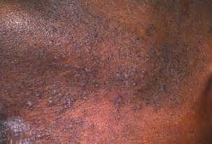 stretch mark near groin picture 11