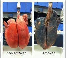 how to quit marijuana smoking picture 5