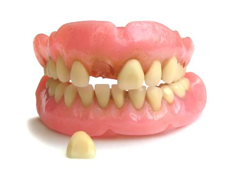 can h be added to denture picture 5