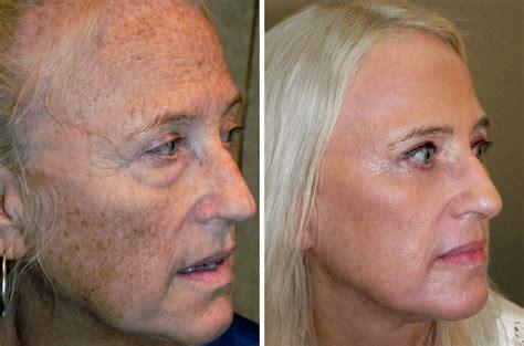 skin & face rash picture 5