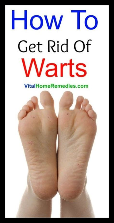 how to get rid of warts picture 3