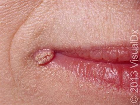 genital warts on mouth picture 5