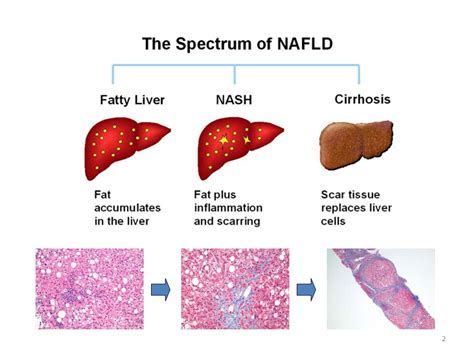 alcoholic fatty liver disease symptoms picture 3