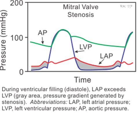 can mitral valve regurgitation may blood pressure low picture 15
