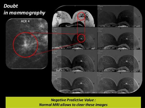 acr ultrasound iso picture 10