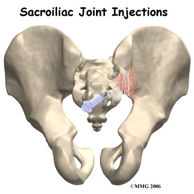 si joint arthritis picture 5