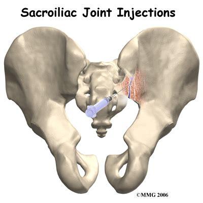 sacroiliac joint arthritis picture 3