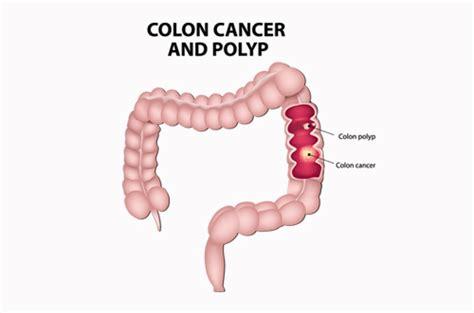do uterine polyps make colon polyps more likely picture 16