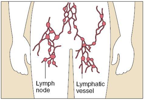 calcium in axillary lymph node and autoimmune disease picture 8