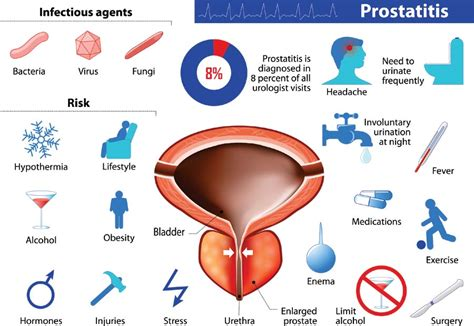 Bacterial infection of the prostate picture 7