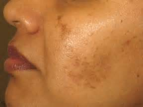 aging spots cure picture 1