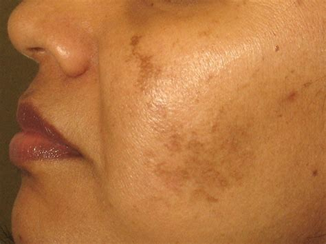 acne mark removal picture 11