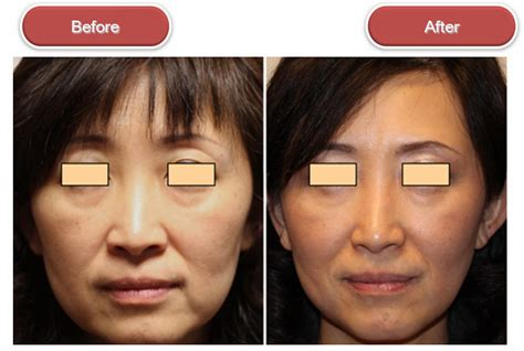 skin tightening treatment the an picture 13