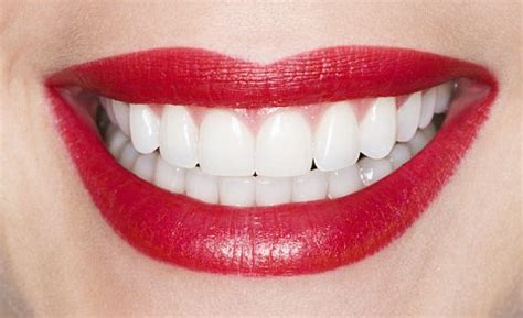 beautiful teeth pictures picture 6