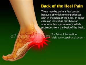heel pain joint pain head ache picture 1