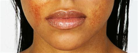 acne antibiotics picture 2