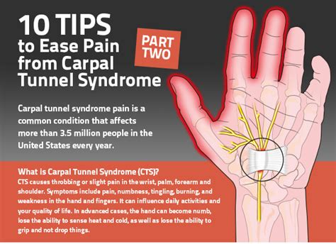 carpal tunnel pain relief picture 13