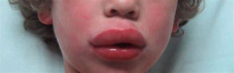 Food allergy lip swollen picture 7