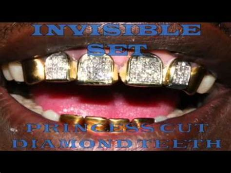 where to get gold teeth in new orleans picture 1