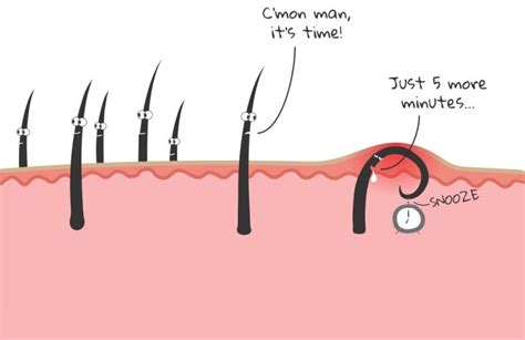 chin hair removal women picture 6