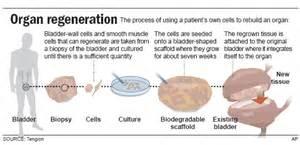 liver transplant harvest timt picture 2